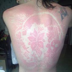 ¡Cuidado! el #SunBurnArt puede causar cáncer de piel (FOTOS)