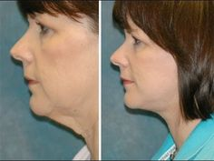 Yoga Procedures For The Face: Stop, Fix, And Tighten Hanging Jowls And Sagging Face Skin - YouTube
