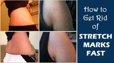 Must read!!! How to Get Rid of Stretch Marks dozens of remedies to try!