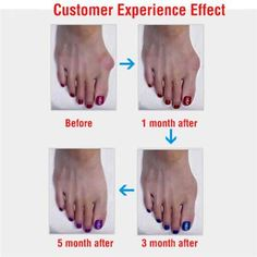 Treatment of Nail Fungus - Healthy Living Diets Bunion Relief, Foot Pain Relief, Bunion Pads, Bunion Surgery, Reflexology Points, Nail Treatment, Nail Fungus, Legs, Full Body