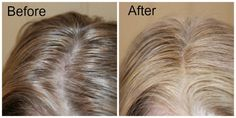 AGEbeautiful Root To