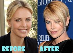 Charlize Theron Plastic Surgery Before and After Pictures