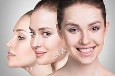Facial rejuvenation is a cosmetic treatment which aims to restore a youthful appearance to the human face. Thread Lift, Creative Food Art, Facial Rejuvenation, Cosmetic Treatments, Beauty Regimen, Free Hair, Laser Hair Removal, Plastic Surgery, Cooking Tips
