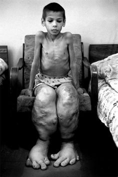 Deformity caused by the chernobyl disaster