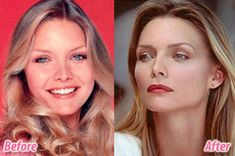 Michelle Pfeiffer she's had a nose job, Botox and fillers, but wow she still looks great. Plastic Surgery Before After, Botox Before And After, Celebrities Before And After, Celebrities Then And Now, Michelle Pfeiffer, Carla Bruni, Under The Knife, Celebrity Plastic Surgery, Perfect Lips