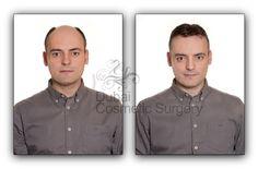 http://besthairtransplantation.blogspot.com/2013/09/evaluate-hair-transplant-surgeon.html #HairTransplant #BestHairTransplantSurgeon