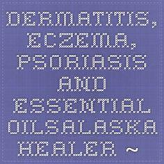 Dermatitis, Eczema, Psoriasis and Essential OilsAlaska Healer ~ doTERRA Essential Oils The psoriaisis recipe i want to use!