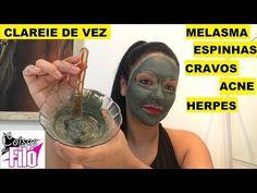 CLAREIA MANCHAS DO ROSTO E CORPO!MELASMA,ESPINHAS,CRAVOS,ACNE,HERPES E OLEOSIDADE! NATURAL,CASEIRA. - YouTube