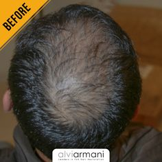 Looking out for a restoration solution that's right for you? You've come to the right place! Check out the outstanding results delivered by Alvi Armani - South Africa. Call us at to book a free consultation today! Hair Transplant In India, Best Hair Transplant, Armani Hair, Natural Hair Care, Natural Hair Styles, Hair Restoration, Beverly Hills, South Africa, Cool Hairstyles