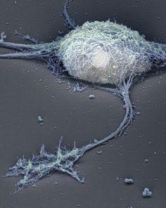 Single neuron under the electron microscope.  Source