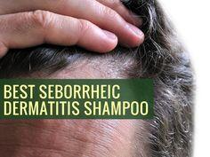 Tips on Finding the Best Seborrheic Dermatitis Shampoo - Treatment for Eczema Eczema Scalp, Seborrheic Keratosis, Best Shampoos, Dandruff, Skin Problems, Skin Whitening, Cream