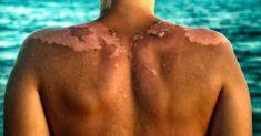Jak může opalovací krém způsobit rakovinu kůže a ne slunce - Vylectese.cz Home Remedies For Sunburn, Natural Wart Remedies, Natural Cancer Cures, Vitamin A, Protector Solar, Natural Sunscreen, Cancer Fighting Foods, Cancer Treatment, Natural Skin