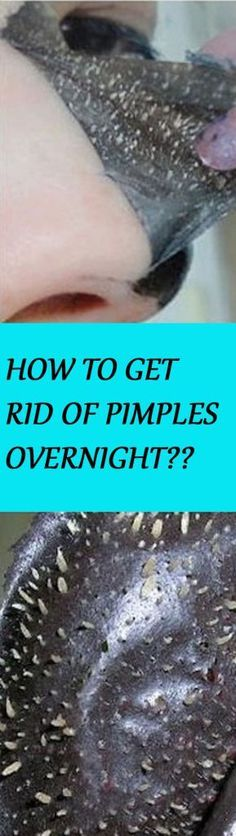 How to get rid of pimples fast, overnight and naturally? Some of these methods are non-toxic, which are natural method.