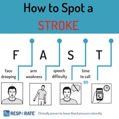 Knowing the signs of a stroke is important.T test to check for symptoms of a stroke. It's easy to remember and can save lives! Natural Blood Pressure, Healthy Blood Pressure, Blood Pressure Remedies, Lower Blood Pressure, Quick Reads, I Want To Know, Signs And Symptoms, Lose 20 Pounds, Warning Signs