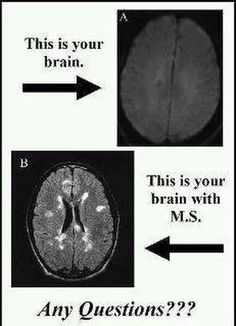 Multiple Sclerosis Awareness  MS location of Lesions can mean everything!   #msawareness #lesion #curems  https://www.facebook.com/msmemesandmore/photos/a.442703572584474.1073741827.442627485925416/592916624229834/