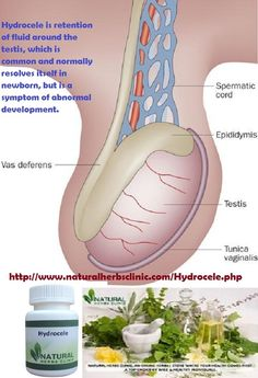 Natural Treatment For Fluid Around The Heart
