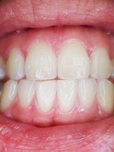Bolest zubů je velmi nepříjemná, často vystřeluje do hlavy a ve chvíli, kdy se objeví, může vám často znepříjemnit celý den. Budete mít problémy sjídlem, protože každé kousnutí vyvolává bolest, může se objevit problém sreakcí na studené a teplé nápoje. Všichni se snažíme odstranit bolest zubů, kterou může způsobovat zánět dásní, zubní kámen. Domácí léčebný …