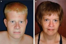 Prader–Willi syndrome  is a rare genetic disorder in which seven genes (or some subset thereof) on chromosome 15 (q 11–13) are deleted or unexpressed (chromosome 15q partial deletion) on the paternal chromosome. Characteristic of PWS is low muscle tone, short stature, incomplete sexual development, cognitive disabilities, problem behaviours, and a chronic feeling of hunger that can lead to excessive eating and obesity. The incidence of PWS is between 1 in 25000-10000 live births.