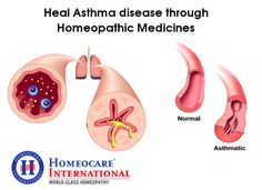 In most of the individuals, Asthma is a long-term disease. Usually main stream treatments of asthma control the disease but not cure it, whereas Asthma Treatment in Homeopathy is a system of medicine which cures the disease instead of providing symptomatic relief. Homeocare International is the world class Homeopathy clinics provides the Homeopathy treatment which provides constitutional Homeopathy treatment for all Asthma problems with the help of natural Homeopathy medicines.