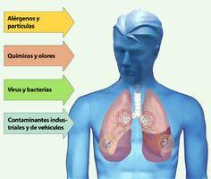 Efectos sobre la salud de las personas: Los contaminantes del aire, como el dióxido de azufre y los óxidos de nitrógeno, pueden causar enfermedades respiratorias, como el asma o la bronquitis crónica. Detox, Medicine, Degenerative Disease