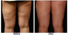 """This is so far the most effective remedy for """"killing"""" of cellulite! Girls claim that this eliminates cellulite in just two nights!"""