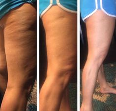 NO matter how many squats I have done and eating right, it never fully got rid of the cellulite... Until now! The Fascia Blaster is the real deal!!! Yes, this is Danielle Long saying this! See Real Results from the FasciaBlaster® | Fascia Massager