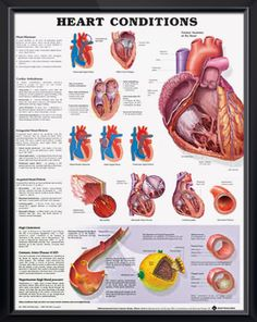Heart Conditions anatomy poster describes heart murmurs, cardiac arrhythmias, congenital and acquired heart defects. Cardiology chart for doctors and nurses.