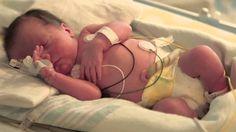 Leap Year monoamniotic twins -- UC Davis Children's Hospital