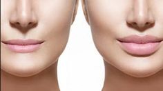 lip augmentation before and after- Celebrities Influence Lip Filler Procedures