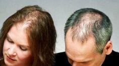 Calvície (Alopecia ) em Homem e Mulher / Receita natural