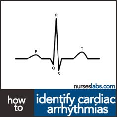 How to Identify Cardiac Arrhythmias (With Videos) And Nursing Responsibilities