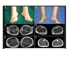 Distal Hereditary Motor - http://www.medikova.com/disease-neuropathy-distal-hereditary-motor-type-va