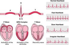 Good visual of heart conduction & electricity