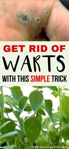Natural Remedies: Learn how to get rid of warts fast at home using this natural treatment!