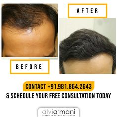 Are you looking out for effective solutions to treat your hair loss? Alvi Armani -India is the choice to make! Call us at to book your free first consultation today! Hair Transplant In India, Best Hair Transplant, Armani Hair, Natural Hair Care, Natural Hair Styles, Hair Restoration, Hair Loss, Beverly Hills, Clinic
