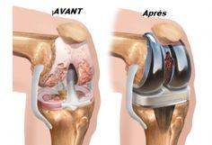 Les douleurs aux genoux et aux articulations sont un problème qui touche de nombreuses personnes à travers le monde. Bien que, dans la plupart des cas, cette condition reste liée au processus du vi…