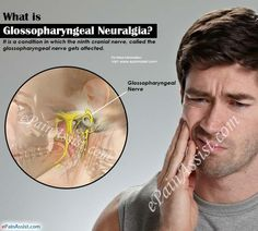 Glossopharyngeal neuralgia affects the glossopharyngeal nerve that supplies the tongue, throat and areas around it. Sudden, severe pain in the back of the throat region is felt, which may last for few seconds to minutes, are seen in glossopharyngeal neuralgia. With proper diagnosis, appropriate treatment can be planned, or surgical treatment for glossopharyngeal neuralgia can be considered.