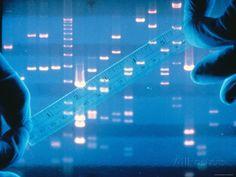 DNA Fingerprinting Closeup Electrophoresis Photographie sur AllPosters.fr