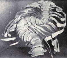 Extreme rotatory curvature of the spine, from Joseph Coats's A Manual of Pathology, 1900