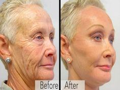 70 Year Old Grandmas Look 40 Again: You Will Not Believe Their Transformations! Facial Scar Removal, Facial Scars, Cinnamon Health Benefits, Honey Benefits, Cake Mix Recipes, Honey And Cinnamon, Health Goals, Healthy Smoothies, Cakes And More
