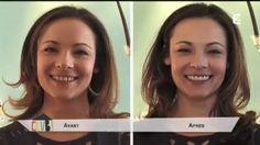 Présentation des facettes dentaires par le Dr. Martine Zisserman