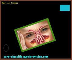 Where Are Sinuses 105825 - Cure Sinusitis