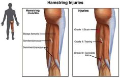 Hamstring injuries are 1 of the most common injuries of the lower body, particularly affecting athletes participating in sports such as football, soccer, or track. After tearing a hamstring muscle, a person is 2 to 6 times more likely to suffer a subsequent injury. Surgery is required to treat the most severe cases. However, in most cases, hamstring injuries are managed with physical therapy.