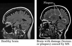 A healthy brain compared to one with Multiple Sclerosis.