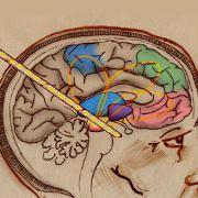 """""""Stimulation cérébrale, un nouvel espoir pour les T.O.C."""" sur Arte"""