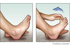Sit in a chair, and extend your affected leg so that your heel is on the floor.  With your hand, reach down and pull your big toe up and back. Pull toward your ankle and away from the floor.  Hold the position for at least 15 to 30 seconds.  Repeat 2 to 4 times a session, several times a day.