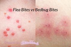 best treatment for itchy dry skin organic baby eczema dermatitis it works new pinterest. Black Bedroom Furniture Sets. Home Design Ideas