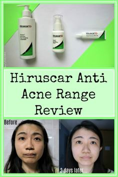 Hiruscar Anti Acne Range which aims to reduce pimples and lighten spots without drying the skin. Improvement could be seen in 2 days!   Clicck to read more!    Hiruscar Anti Acne Pore Purifying Cleanser   Hiruscar Anti Acne Pore Purifying Serum   Hiruscar Anti Acne Spot Gel