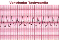 Ventricular Tachycardia, Nursing Mnemonics, Cardiology, Monitor, Career, Behance, Tech, Tattoos, School