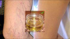 Elimina en un !Santiamén! las Várices con tan solo utilizar este aceite de esta manera. !Hidratará tu Piel!